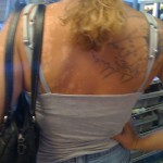Skin Disorders and Tattoos
